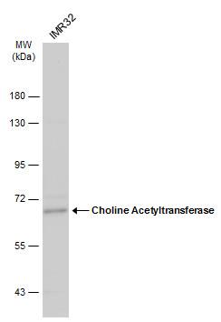 Whole cell extract (30 μg) was separated by 7.5% SDS-PAGE, and the membrane was blotted with Choline Acetyltransferase antibody [N1N3] (GRP586) diluted at 1:500. The HRP-conjugated anti-rabbit IgG antibody  was used to detect the primary antibody.