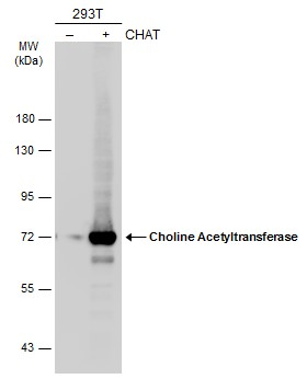 Non-transfected (–) and transfected (+) 293T whole cell extracts (30 μg) were separated by 7.5% SDS-PAGE, and the membrane was blotted with Choline Acetyltransferase antibody [N1N3] (GRP586) diluted at 1:5000. The HRP-conjugated anti-rabbit IgG antib