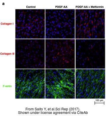 The ICC/IF analysis of Collagen III antibody [C2C3-2], C-term was published by Saito Y and colleagues in the journal Sci Rep in 2017 .