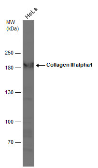 Whole cell extract (30 μg) was separated by 5% SDS-PAGE, and the membrane was blotted with Collagen III alpha1 antibody [C2C3-2], C-term (GRP501) diluted at 1:1000.