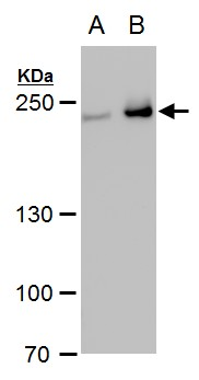 Collagen III antibody [C2C3], C-term detects Collagen III protein by western blot analysis.A. 30 μg PC-12 whole cell extract B. 30 μg Rat2 whole cell extract5% SDS-PAGECollagen III antibody [C2C3], C-term (GRP484) dilution: 1:1000 The HRP-conjugated