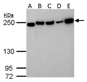 Collagen III antibody [C2C3], C-term detects Collagen III protein by western blot analysis.A. 30 μg Neuro2A whole lysate/extract B. 30 μg NIH-3T3 whole cell lysate/extract C. 30 μg BCL-1 whole cell lysate/extract D. 30 μg Raw264.7 whole cell l