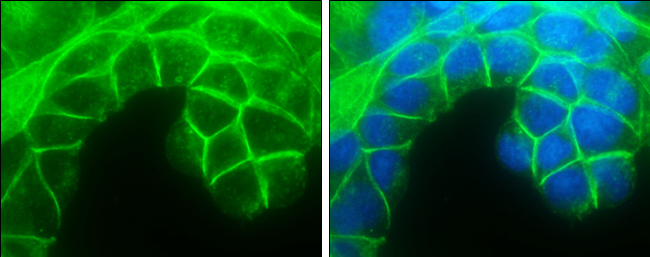 E-Cadherin antibody detects E-Cadherin protein at cell membrane by immunofluorescent analysis.Sample: MCF7 cells were fixed in 4% paraformaldehyde at RT for 15 min.Green: E-Cadherin protein stained by E-Cadherin antibody (GRP459) diluted at 1:500.Blue: Ho