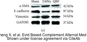 The WB analysis of E-Cadherin antibody was published by Zhang X and colleagues in the journal Evid Based Complement Alternat Med in 2019.PMID: 31186661