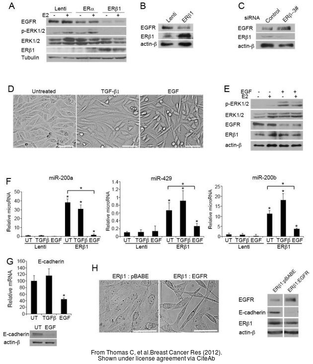 The WB analysis of Estrogen Receptor beta antibody [14C8] was published by Thomas C and colleagues in the journal Breast Cancer Res in 2012 .