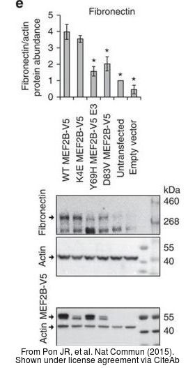 The WB analysis of Fibronectin antibody [N1N2], N-term was published by Pon JR and colleagues in the journal Nat Commun in 2015.PMID: 26245647