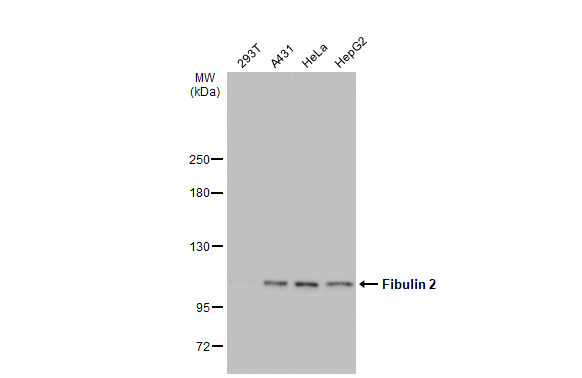 Various whole cell extracts (30 μg) were separated by 5% SDS-PAGE, and the membrane was blotted with Fibulin 2 antibody (GRP489) diluted at 1:1000. The HRP-conjugated anti-rabbit IgG antibody  was used to detect the primary antibody.