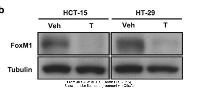 The WB analysis of FOXM1 antibody was published by Ju SY and colleagues in the journal Cell Death Dis in 2015.PMID: 26136074