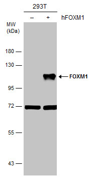 Non-transfected (–) and transfected (+) 293T whole cell extracts (30 μg) were separated by 7.5% SDS-PAGE, and the membrane was blotted with FOXM1 antibody [C3], C-term (GRP456) diluted at 1:5000.