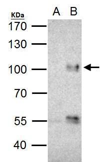 FOXO3A antibody immunoprecipitates FOXO3A protein in IP experiments. IP Sample: Jurkat whole cell lysate/extract  A. Control with 2 ?g of preimmune rabbit IgG B. Immunoprecipitation of FOXO3A protein by 2 ?g of FOXO3A antibody (GRP457) 5% SDS-PAGE  The im