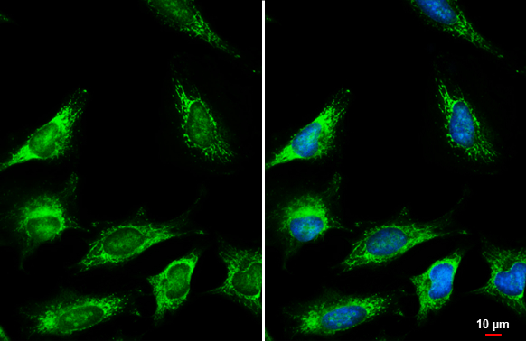 Fumarate hydratase antibody detects Fumarate hydratase protein at mitochondria by immunofluorescent analysis.Sample: HeLa cells were fixed in ice-cold MeOH for 5 min.Green: Fumarate hydratase stained by Fumarate hydratase antibody (GRP495) diluted at 1:50