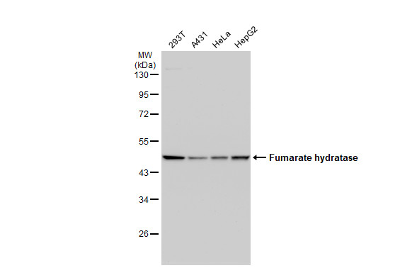 Various whole cell extracts (30 μg) were separated by 10% SDS-PAGE, and the membrane was blotted with Fumarate hydratase antibody (GRP495) diluted at 1:1000. The HRP-conjugated anti-rabbit IgG antibody  was used to detect the primary antibody.