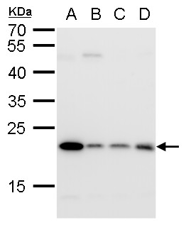Glyoxalase I antibody detects Glyoxalase I protein by Western blot analysis.A. 30 ?g A431 whole cell lysate/extract B. 30 ?g HeLa whole cell lysate/extract C. 30 ?g HepG2 whole cell lysate/extract12 % SDS-PAGEGlyoxalase I antibody (GRP492) dilution: 1:100