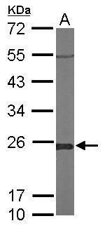 Sample (50 μg of whole cell lysate)  A: Mouse brain  12% SDS PAGE  GRP492 diluted at 1:1000 The HRP-conjugated anti-rabbit IgG antibody  was used to detect the primary antibody.