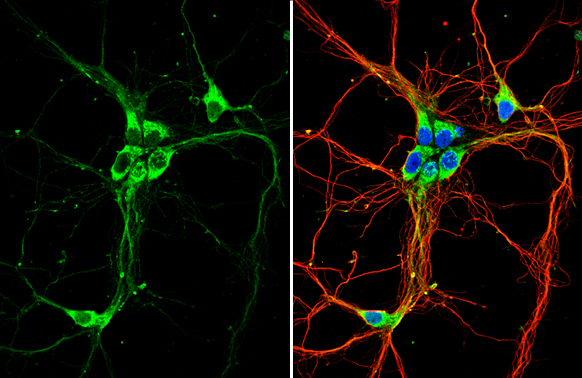 GPR30 antibody detects GPR30 protein by immunofluorescent analysis.Sample: DIV9 rat E18 primary hippocampal neuron cells were fixed in 4% paraformaldehyde at RT for 15 min.Green: GPR30 stained by GPR30 antibody (GRP493) diluted at 1:500.Red: beta Tubulin