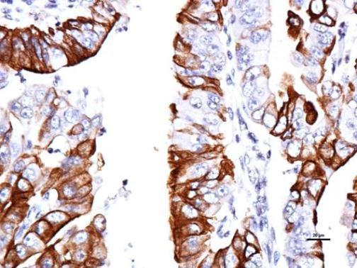 Immunohistochemical analysis of paraffin-embedded human endometrial, using GPR30(GRP493) antibody at 1:150 dilution.