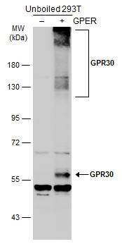 Non-transfected (–) and transfected (+) unboiled 293T whole cell extracts (30 μg) were separated by 7.5% SDS-PAGE, and the membrane was blotted with GPR30 antibody [C2C3], C-term (GRP493) diluted at 1:1000. The HRP-conjugated anti-rabbit IgG antibody