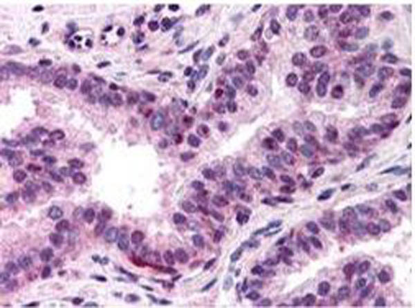 Anti-NF-Y (A Subunit) Antibody - Immunohistochemistry