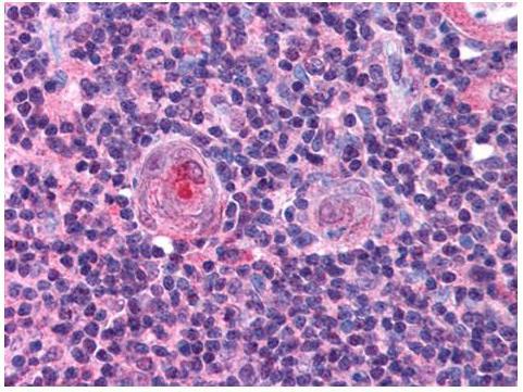 Anti-NF-Y (B Subunit) Antibody – Immunohistochemistry