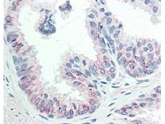 AKT pS473 Monoclonal Antibody – Immunohistochemistry