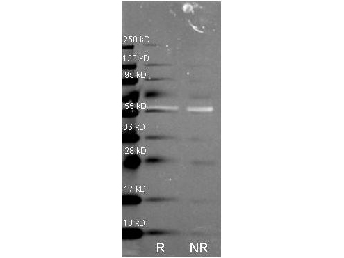 Anti Catalase Polyclonal Antibody-Western blot