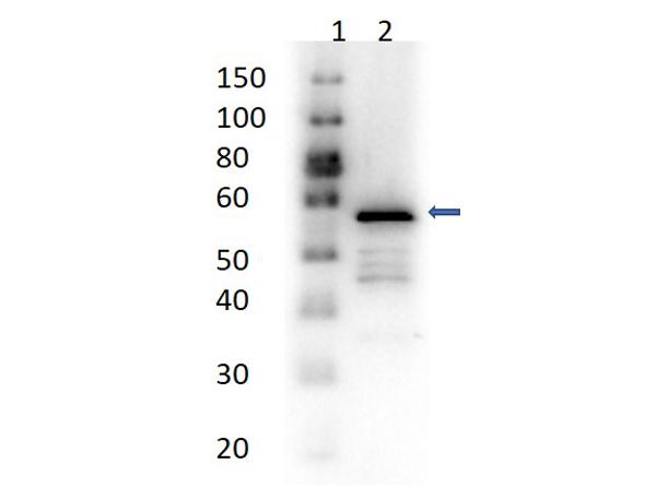 Western Blot Results of Rabbit Anti-Aldehyde Dehydrogenase Antibody