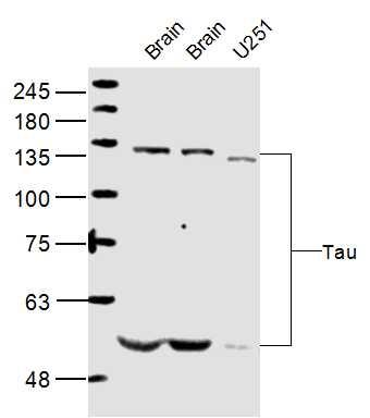 IHC-P of GRP206