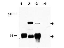 Anti-MECT1 Antibody - Western Blot