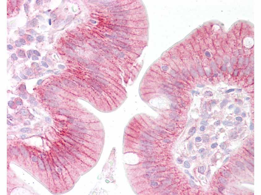 beta Catenin Antibody - IHC