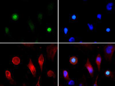 Histone H3 [p Thr3, ac Lys4] Immunofluorescence
