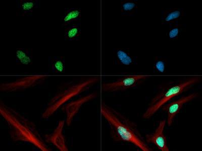 Histone H3 [ac Lys4] Immunofluorescence