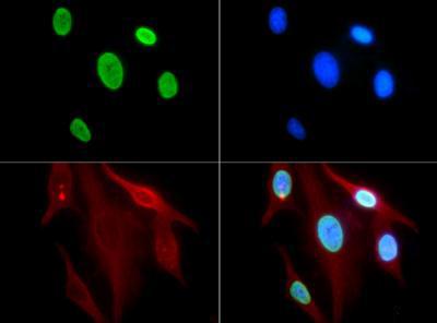 Histone H3 [ac Lys9] Immunofluorescence
