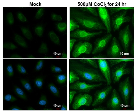 Heme Oxygenase 1 antibody detects Heme Oxygenase 1 protein at endoplasmic reticulum by immunofluorescent analysis.Sample: Mock and treated HeLa cells were fixed in 4% paraformaldehyde at RT for 15 min.Green: Heme Oxygenase 1 stained by Heme Oxygenase 1 an