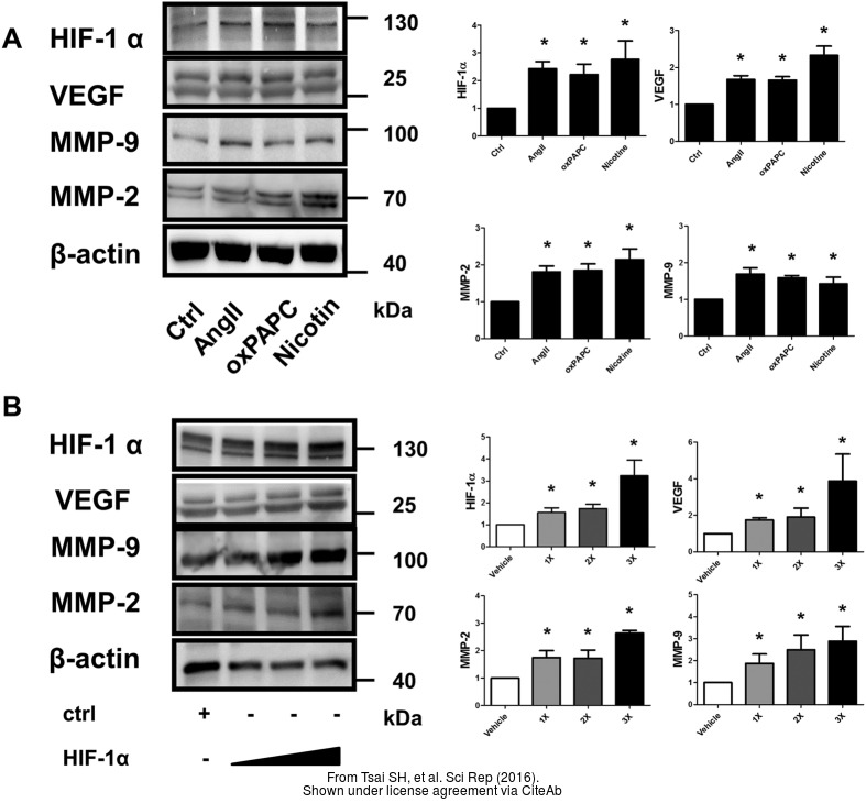The WB analysis of HIF1 alpha antibody was published by Tsai SH and colleagues in the journal Sci Rep in 2016.PMID: 27363580