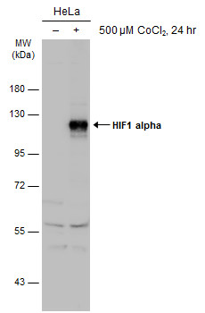 Untreated (–) and treated (+) HeLa whole cell extracts (30 μg) were separated by 7.5% SDS-PAGE, and the membrane was blotted with HIF1 alpha antibody (GRP517) diluted at 1:1000. The HRP-conjugated anti-rabbit IgG antibody  was used to detect the prim