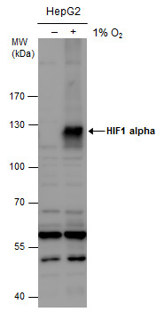 HIF1 alpha antibody detects HIF1 alpha protein by western blot analysis. Un-treated (-) and treated (+, 1% O2 treatment for 24hr) HepG2 whole cell extracts (30 μg) were separated by 7.5% SDS-PAGE, and the membrane was blotted with HIF1 alpha antibody (