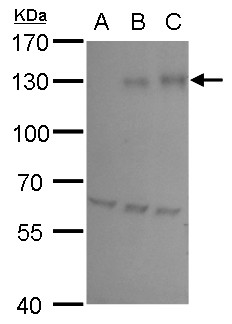 HIF1 alpha antibody detects HIF1 alpha protein by western blot analysis.A. 30 μg HepG2 whole cell lysate/extract (untreated) B.30 μg HepG2 whole cell lysate/extract ( 200 ?M CoCl2 treatment for 24 hr)C. 30 μg HepG2 whole cell lysate/extract (500