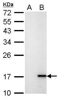 Histone H2A.X (phospho S139) antibody [GT2311] detects H2AFX protein by western blot analysis.A. 30 μg HCT116 whole cell lysate/extract (untreated)B. 30 μg HCT116 whole cell lysate/extract (30 μM cisplatin treatment for 24hr)12% SDS-PAGEHistone H