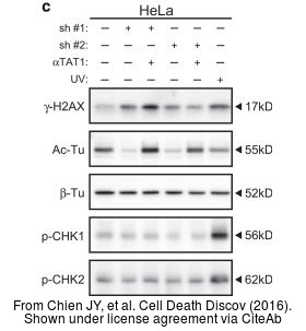 The WB analysis of Histone H2A.XS139ph (phospho Ser139) antibody was published by Chien JY and colleagues in the journal Cell Death Discov in 2016.PMID: 27551500