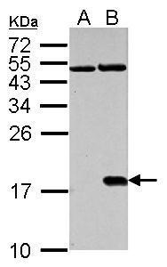 Histone H2A.X (phospho Ser139) antibody detects H2AFX protein in cisplatin-treated samples by western blot analysis.A. 30 μg NIH-3T3 whole cell lysate/extract (untreated) B. 30 μg NIH-3T3 whole cell lysate/extract (30μM cisplatin treatment for 24