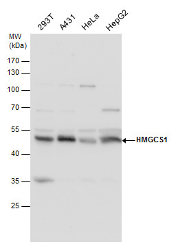 HMGCS1 antibody detects HMGCS1 protein by western blot analysis. Various whole cell extracts (30 μg) were separated by 10% SDS-PAGE, and the membrane was blotted with HMGCS1 antibody (GRP502) diluted by 1:5000. The HRP-conjugated anti-rabbit IgG antibo