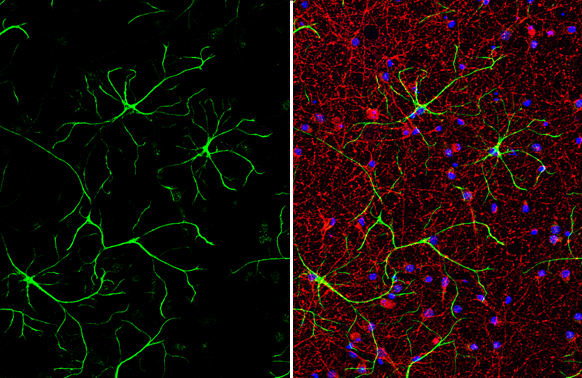 IL1 beta antibody detects IL1 beta protein by immunofluorescent analysis.Sample: DIV9 rat E18 primary cortical neuron and glia cells were fixed in 4% paraformaldehyde at RT for 15 min.Green: IL1 beta stained by IL1 beta antibody (GRP629) diluted at 1:500.