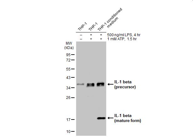 Untreated (–) and treated (+) THP-1 whole cell extract and conditioned medium (30 μg) were separated by 12% SDS-PAGE, and the membrane was blotted with IL1 beta antibody (GRP629) diluted at 1:500. The HRP-conjugated anti-rabbit IgG antibody  was used