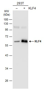 Non-transfected (–) and transfected (+) 293T whole cell extracts (30 μg) were separated by 10% SDS-PAGE, and the membrane was blotted with KLF4 antibody (GRP475) diluted at 1:1000. The HRP-conjugated anti-rabbit IgG antibody  was used to detect the p