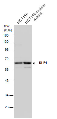 HCT116 whole cell and nuclear extracts (30 μg) were separated by 10% SDS-PAGE, and the membrane was blotted with KLF4 antibody (GRP475) diluted at 1:2000. The HRP-conjugated anti-rabbit IgG antibody  was used to detect the primary antibody.