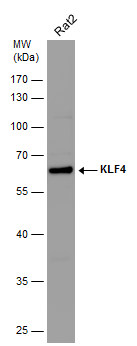 Whole cell extract (30 μg) was separated by 10% SDS-PAGE, and the membrane was blotted with KLF4 antibody (GRP475) diluted at 1:5000. The HRP-conjugated anti-rabbit IgG antibody  was used to detect the primary antibody.