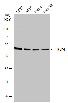 Various whole cell extracts (30 μg) were separated by 10% SDS-PAGE, and the membrane was blotted with KLF4 antibody (GRP475) diluted at 1:5000. The HRP-conjugated anti-rabbit IgG antibody  was used to detect the primary antibody.