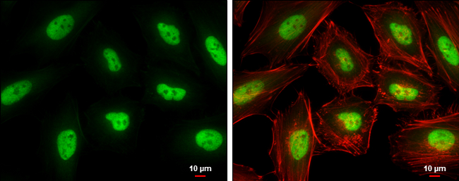 KLF5 antibody detects KLF5 protein at nucleus by immunofluorescent analysis.Sample: HeLa cells were fixed in 4% paraformaldehyde at RT for 15 min.Green: KLF5 protein stained by KLF5 antibody (GRP485) diluted at 1:500.Red: Phalloidin, a cytoskeleton marker