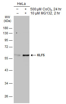 Untreated (–) and treated (+) HeLa whole cell extracts (30 μg) were separated by 10% SDS-PAGE, and the membrane was blotted with KLF5 antibody (GRP485) diluted at 1:1000. The HRP-conjugated anti-rabbit IgG antibody  was used to detect the primary ant