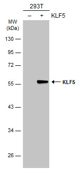 Non-transfected (–) and transfected (+) 293T whole cell extracts (30 μg) were separated by 10% SDS-PAGE, and the membrane was blotted with KLF5 antibody (GRP485) diluted at 1:5000. The HRP-conjugated anti-rabbit IgG antibody  was used to detect the p